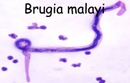 Brugia malayi