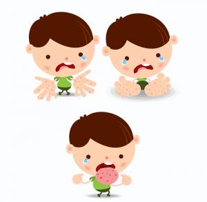 gejala penyakit Virus Coxsackie