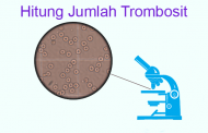 Hitung Jumlah Trombosit Metode Pipet