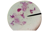 Pemeriksaan Sedimen Urine Metode Sternheimer Malbin